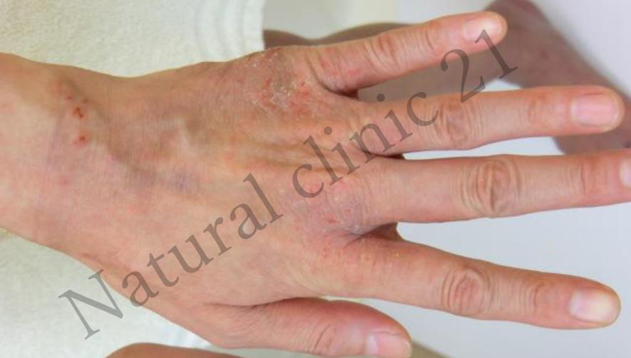 手の甲の接触皮膚炎