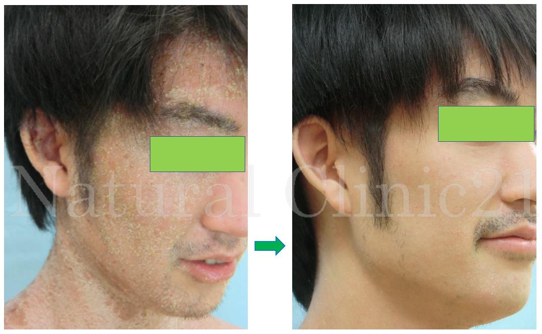 顔のアトピーが改善