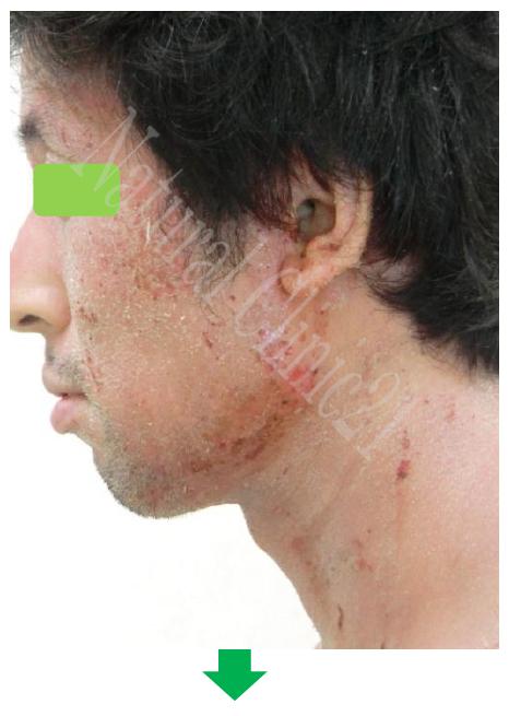 水痘 症 カポジ 様 治療 発疹
